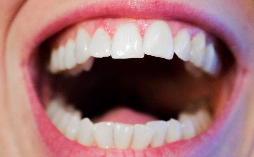 Nowoczesna technika wykorzystywana w salonach stomatologii estetycznej może spowodować, że odbierzemy piękny uśmieszek.
